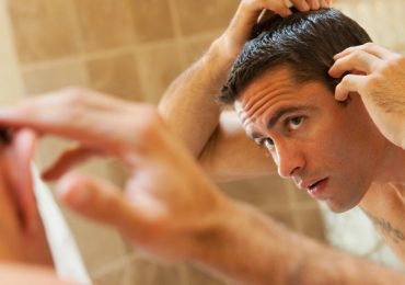 Home Remedies To Control Hair Loss