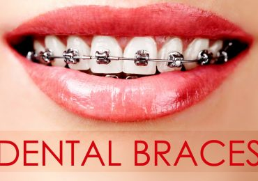 Things To Know Before You Get Dental Braces