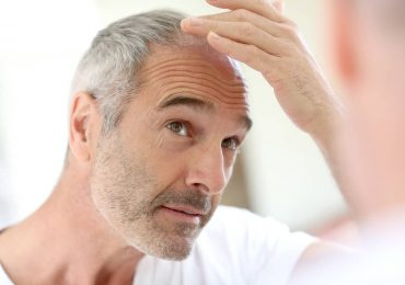 What Are Your Options For Hair Replacement?