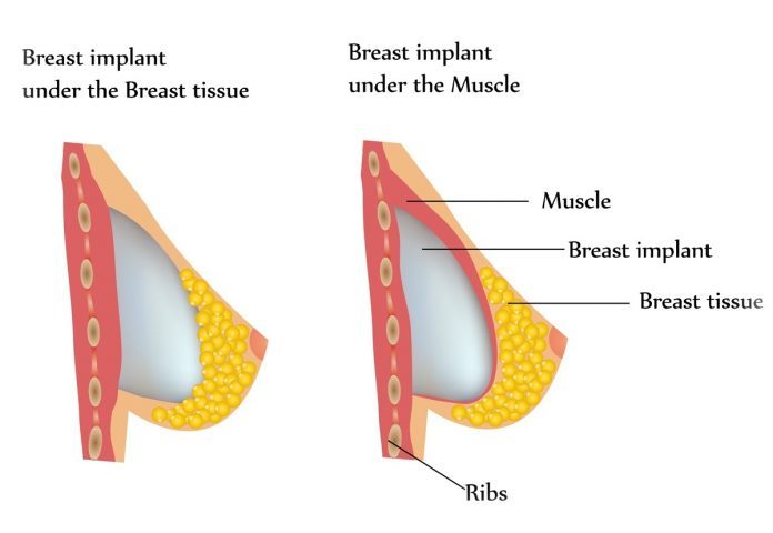 breast-augmentation-surgery