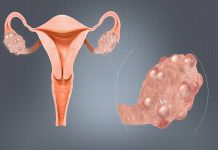 Causes of POCD and PCOS